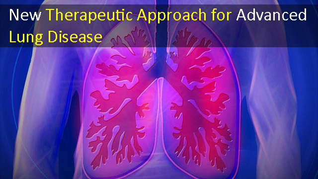 New Class of Drugs for the Treatment of Advanced Lung Disease