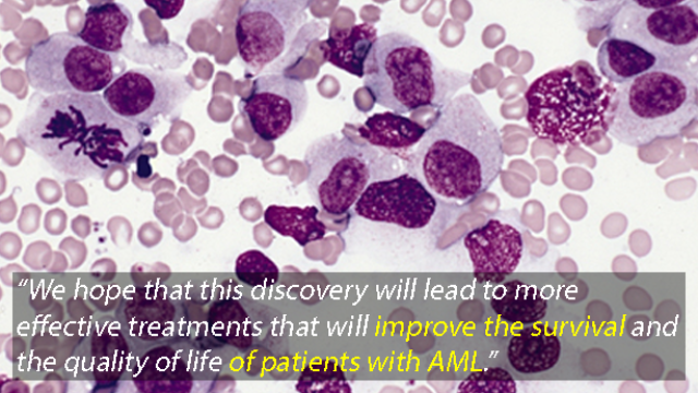 New Drug Target for Acute Myeloid Leukaemia