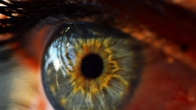 New Genes Associated with the Leading Cause of Blindness