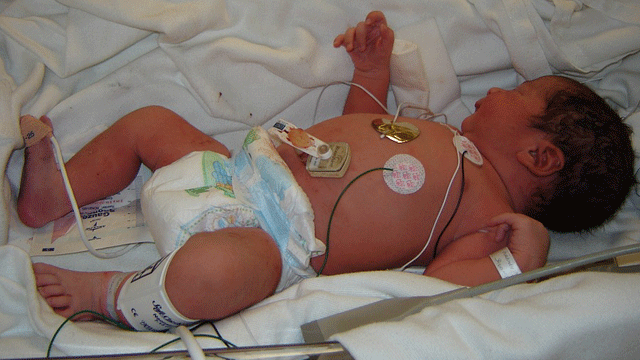 New Guidelines for Diagnosing C. difficile in the Neonatal Intensive Care Unit