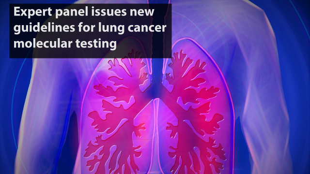 New Guidelines for Lung Cancer Molecular Testing Issued