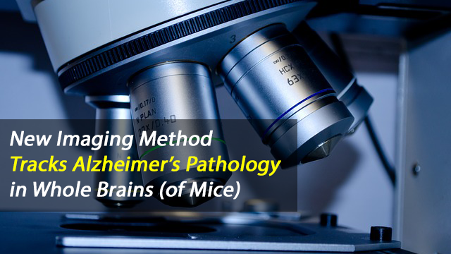 New Imaging Approach Maps Alzheimer's Pathology in the Whole Brain of Mice