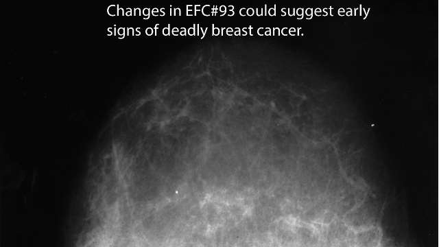 New Marker In Blood Could Detect Fatal Breast Cancer Up To One Year Earlier