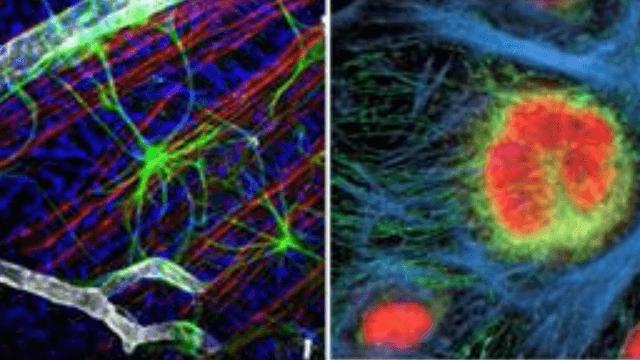 New Method for Tumor Progression Visualization