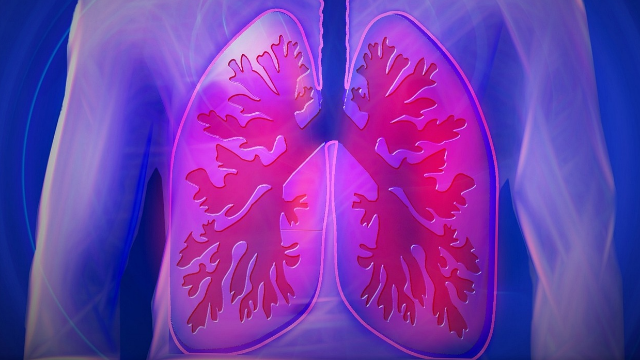New Method to Rule out Early Stage Lung Cancer