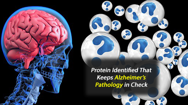 New Player in Alzheimer's Disease Pathogenesis Identified