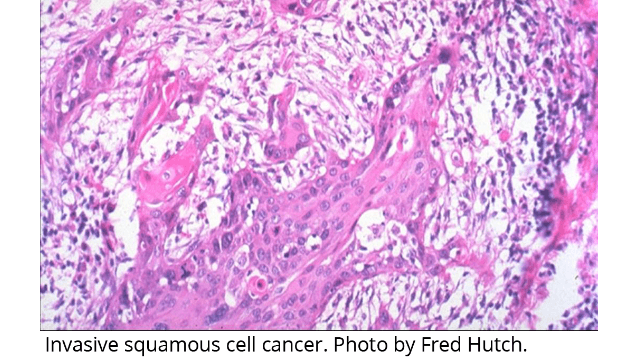 New Subtype of Cervical Cancer Identified