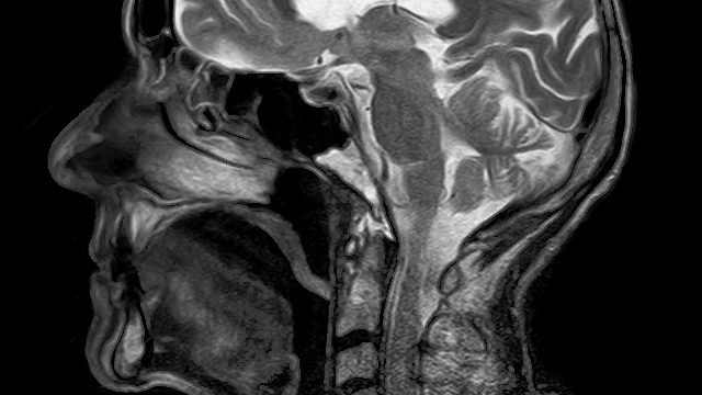 New Technique Enhances the Diagnostic Ability of MRI