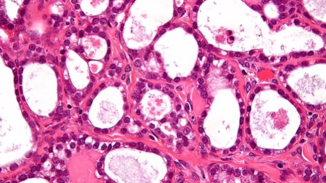 New Technology can Detect Tiny Ovarian Tumors