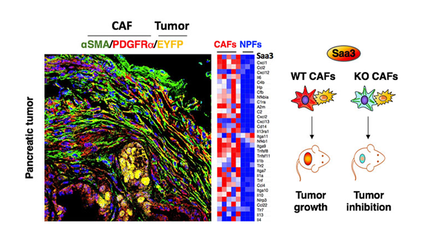 New Therapeutic Strategy for Pancreatic Cancer?