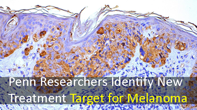 New Treatment Target for Melanoma