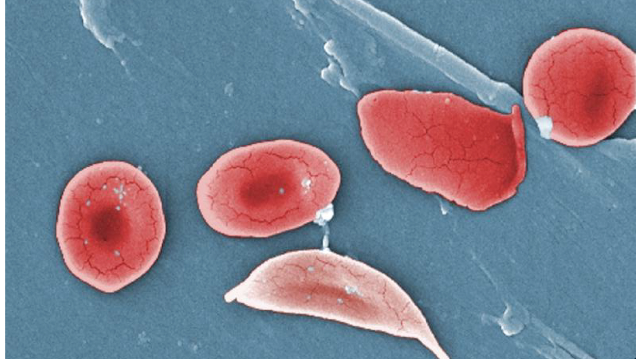 NIH Targets Genetic Cure for Sickle Cell Disease