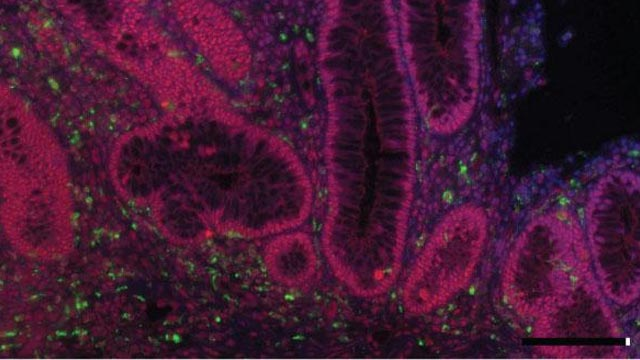 Novel Therapeutic Targets for Tumors Associated with Chronic Inflammation