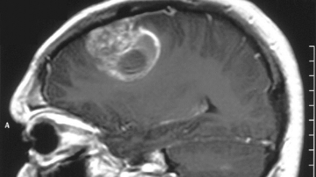 Drug identified that could limit the spread of deadly brain tumors
