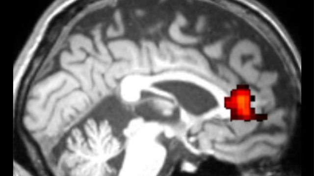 Brain scan reveals cognitive deficits in older 'cognitively normal' individuals living with HIV