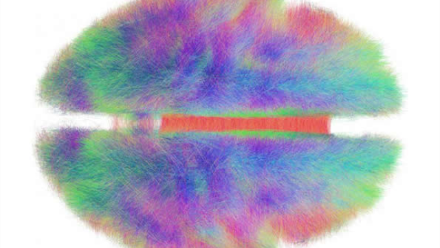 Global brain initiatives generate tsunami of neuroscience data