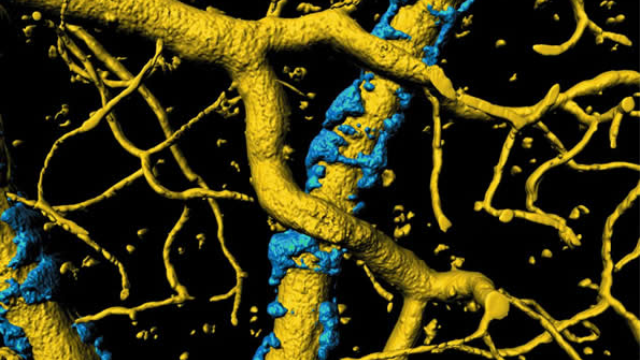 Insight into cause of Alzheimer's symptoms: Amyloid plaques may be strangling blood flow