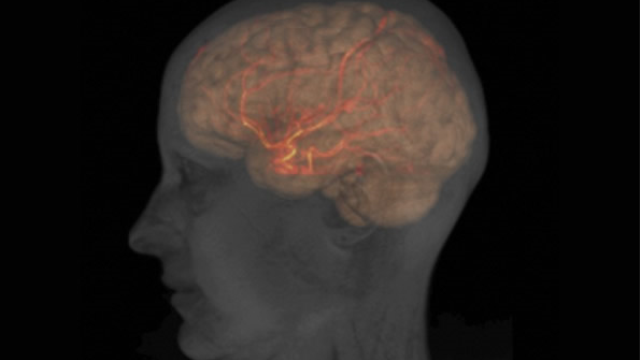 Stroke damage mechanism identified