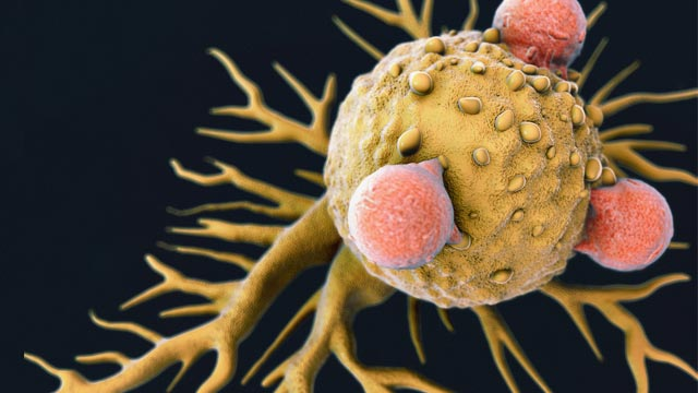 Obesity and Cancer: 'Fat-clogged' Immune Cells Fail to Fight Tumors