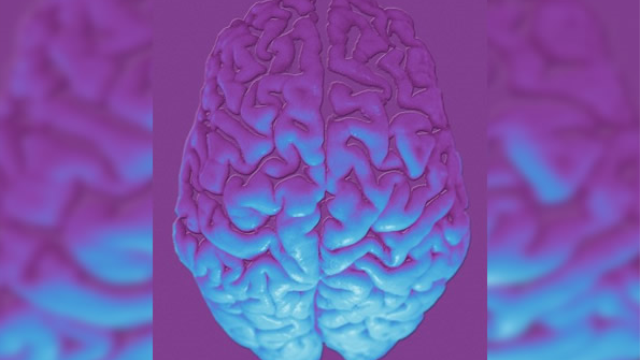 Neuroimaging method to better identify epileptic lesions developed