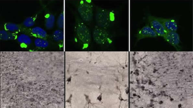 Structure of toxic tau aggregates determines type of dementia, rate of progression