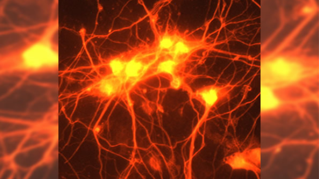 Main component of brain repair after stroke identified