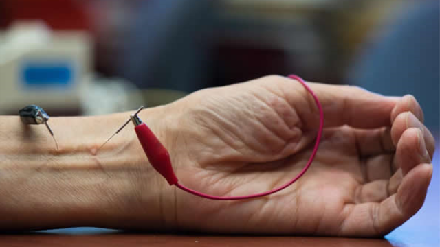 Study finds acupuncture lowers hypertension by activating natural opioids