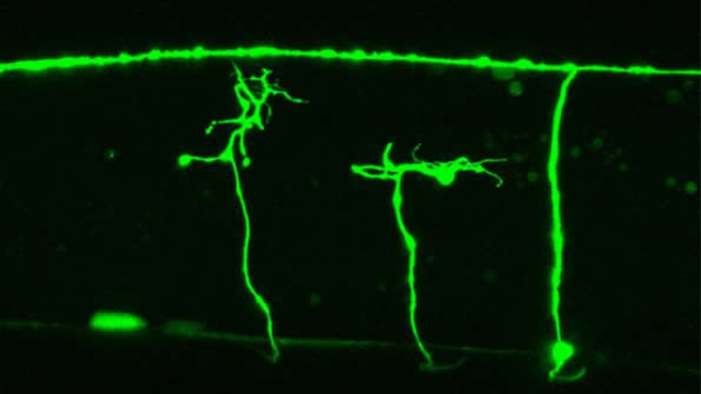 Unraveling roundworm nerve regeneration mechanism could aid nerve injury treatment