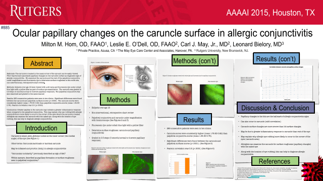 Ocular papillary changes on the caruncle surface in allergic conjunctivitis