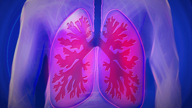 One Step Closer to Precision Medicine for Chronic Lung Disease Sufferers