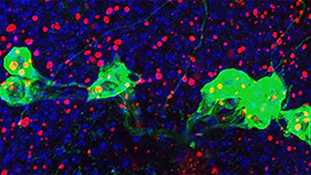 Overactive Immune System Implicated in Aging Brain Disorders