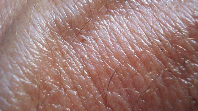 Paintable Chemotherapy Could Shrink Skin Tumors