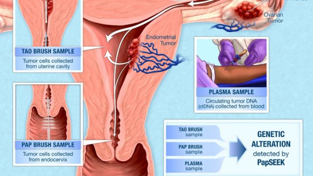 Pap Test Fluids Used to Test for Endometrial & Ovarian Cancers