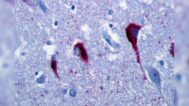 Pathological Tau Accumulates More in Excitatory, than Inhibitory, Neurons