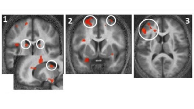 Photic memory for executive brain responses