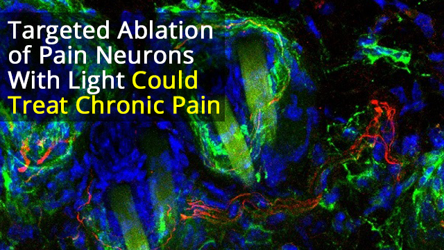 Photoablation of Sensory Neurons to Manage Chronic Pain