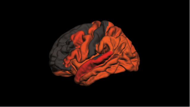 Poor Sleep Associated With Higher Levels of Alzheimer's Protein