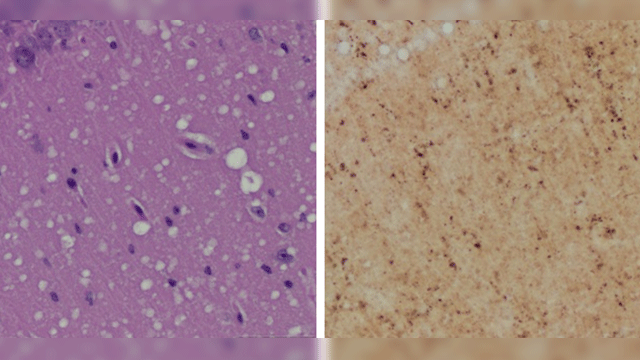 Pre-symptomatic Skin Test for Prion Disease May Replace Brain Biopsy