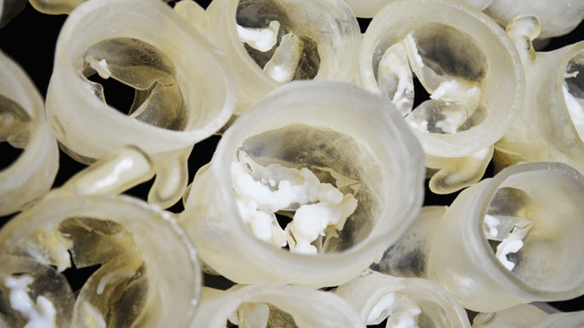 Predicting Leaky Heart Valves with 3D Printing