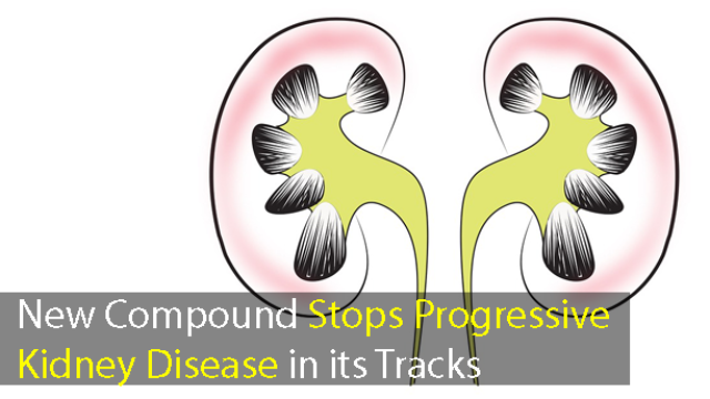 Progressive Kidney Disease: New Compound Restores Kidney Function