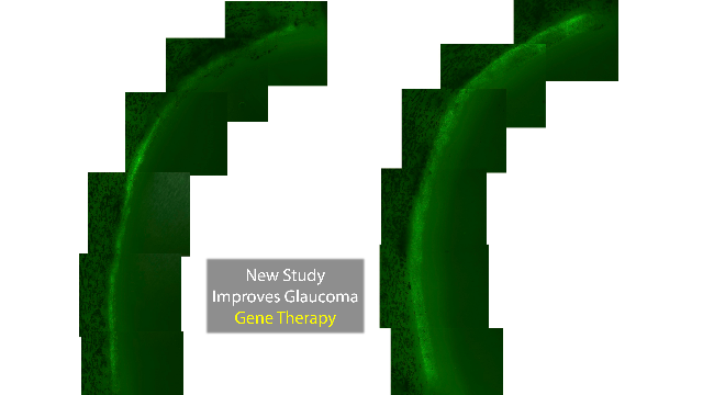 Proteasome Blocker Brings Glaucoma Gene Therapy Closer