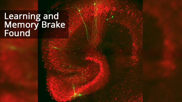 Protein Acts as Brake on Learning and Memory