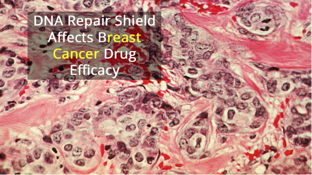 "Protein ""Shield"" Affects Responses to Breast Cancer Drug"
