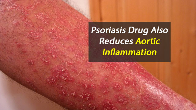 Psoriasis Drug Also Reduces Aortic Inflammation