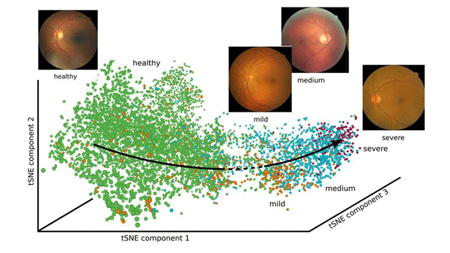 Reconstruction of Disease Progression Using Novel Deep Learning Method