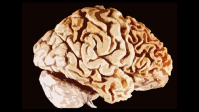 Reduction in Progranulin Linked to Frontotemporal Dementia