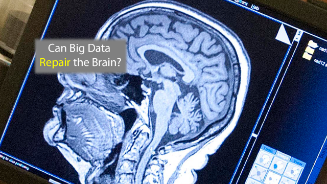 Brain Repair Requires a Big Data Approach