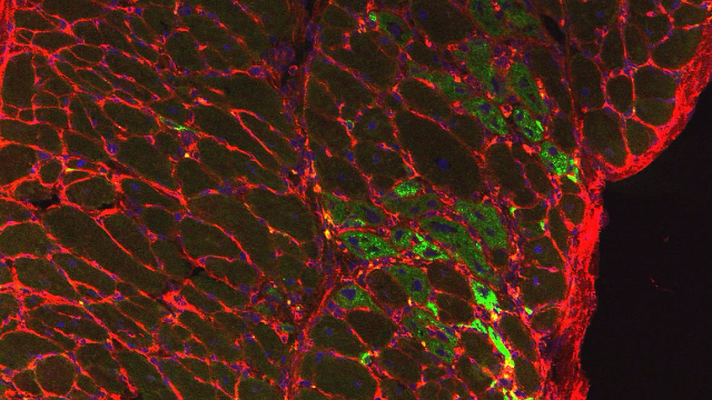Repurposed Cancer Drug Could Treat Duchenne Muscular Dystrophy
