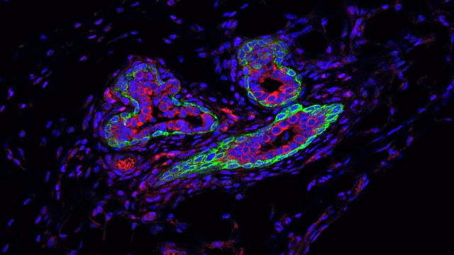 RNA Molecule that Shields Breast Cancer Stem Cells from Immune System Identified