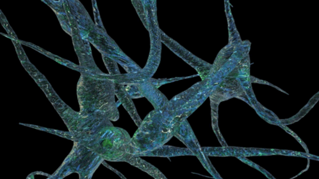 RNA Transcripts in Blood Could Help Detect Alzheimer's Disease Earlier